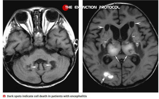 00 Brain Damage